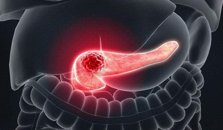 در چه مواردی انجام تست ژنتیک سرطان پانکراس ارثی ضروری است ؟
