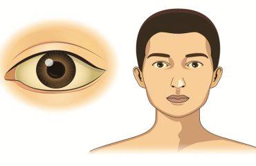 تشخیص و درمان سندروم ژیلبرت   آزمایشگاه ژنتیک اصفهان