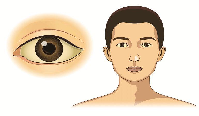 تشخیص و درمان سندروم ژیلبرت | آزمایشگاه ژنتیک اصفهان